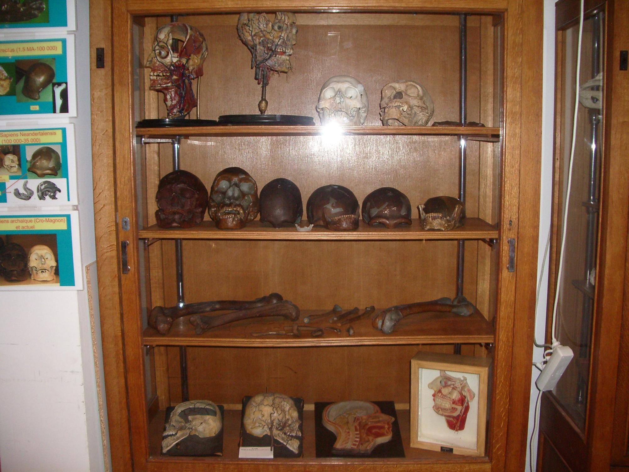 Ulb Louis Deroubaix Museum Of Human Anatomy And Embryology
